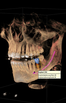 Integrated implantology
